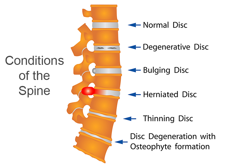 illustration of examples of conditions of the spine
